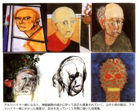 アルツハイマー病、自画像