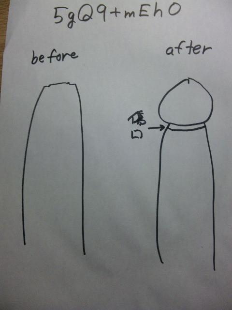包茎手術2