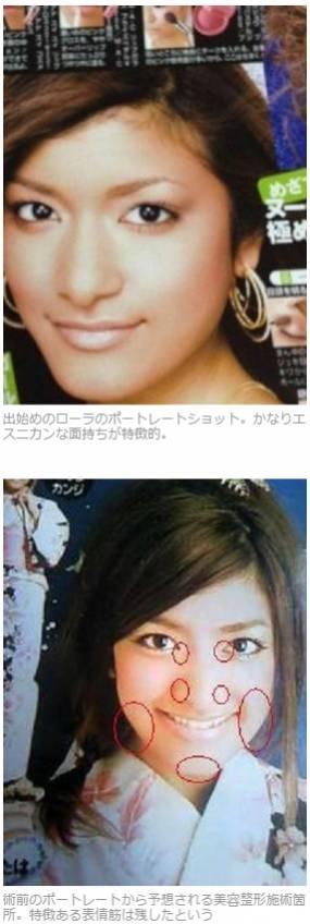 山本一郎「ローラの美容整形は事実」「10代タレントの整形は虐待」