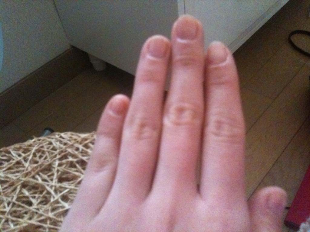 噛み爪・深爪矯正