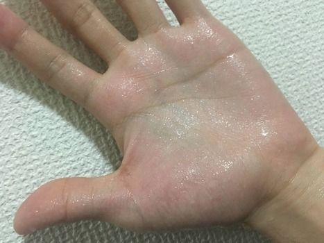 多汗症のワイの手から汗が噴出した時の状態がこちらwww