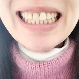 歯列矯正ブラックトライアングルチェック