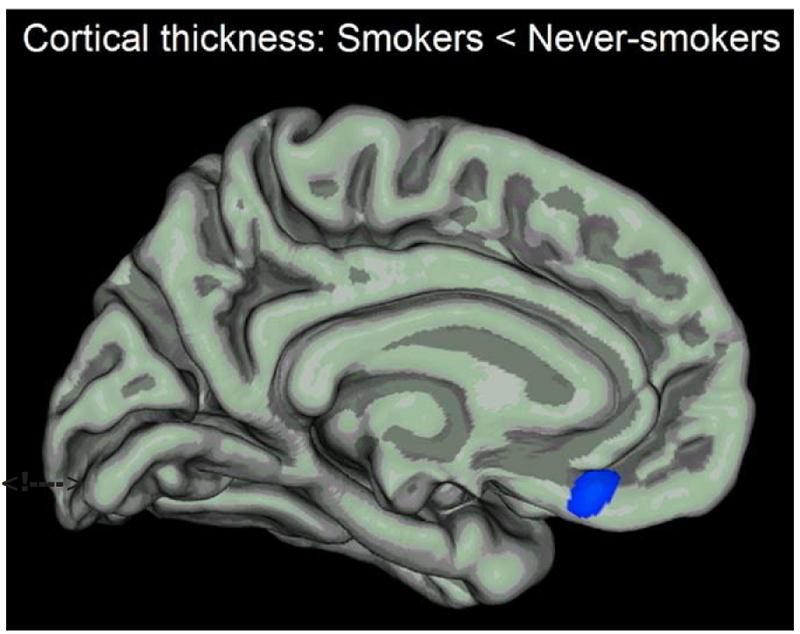 【医学】「喫煙者の脳」がヤバすぎ!!! 研究で判明してしまうwwwwwwwwwwwwのサムネイル画像