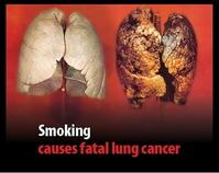 タバコを吸うから馬鹿になるのか、馬鹿だからタバコを吸うのかのサムネイル画像