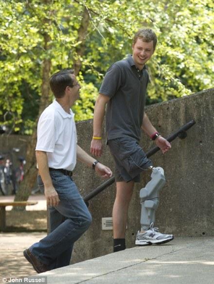 最新の義足が凄すぎるのサムネイル画像