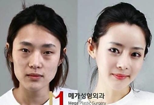 【衝撃】韓国で美容整形に「失敗」する中国人が増加 → 駆け込み寺がコチラwwwwwwwwwwwwwwwのサムネイル画像
