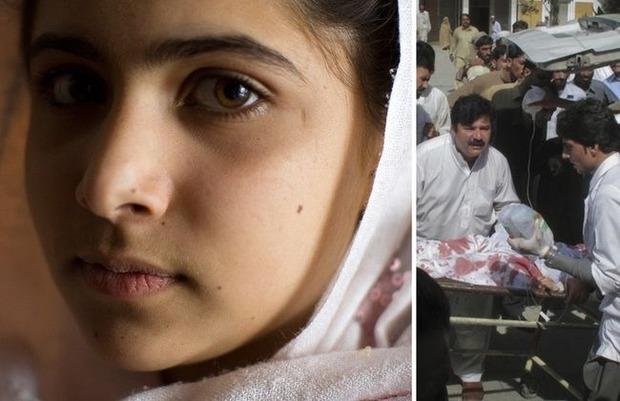 【画像】14歳の少女がブログでタリバンを批判 ⇒ 下校中に頭を撃たれるのサムネイル画像