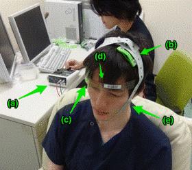 【立証】頭部に電流を流し、「統合失調症」を改善wwwwwwwwのサムネイル画像