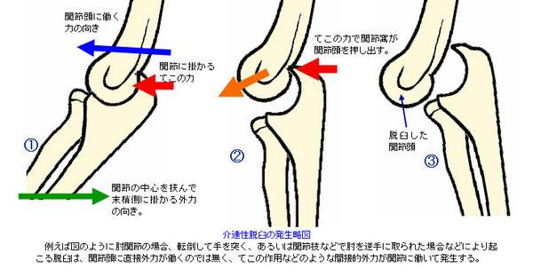 【動画】高校野球高知県大会にて、肩を脱臼して苦しむ選手に監督が・・・のサムネイル画像