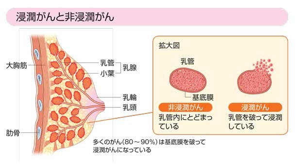【衝撃】小林麻央さんの命奪った乳がん、意外と知らない基礎知識・・・のサムネイル画像