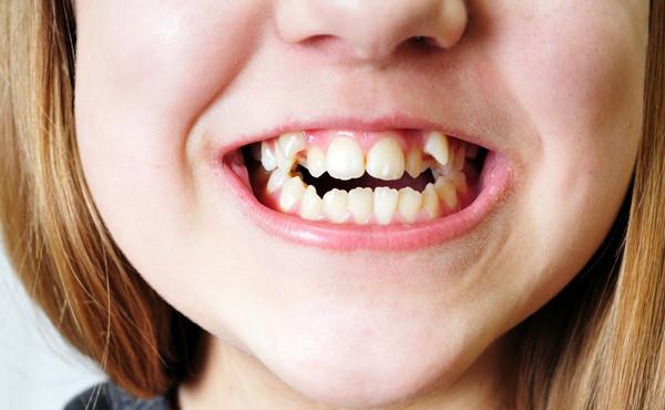 中国人「八重歯が可愛いって、日本人は正気か?歯並びが悪くて気持ち悪いだけだろ!」のサムネイル画像