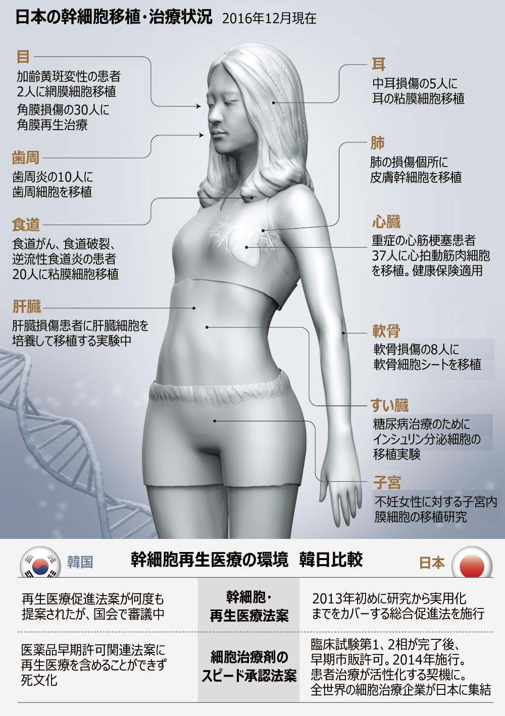 【朝鮮日報】韓国で行き詰まった幹細胞研究、日本で開花のサムネイル画像