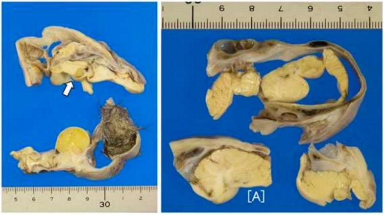 まだ見ぬ双子との再会。 16歳の少女が盲腸の手術→生きた脳を含む人の頭部が卵巣から発見される・・・のサムネイル画像