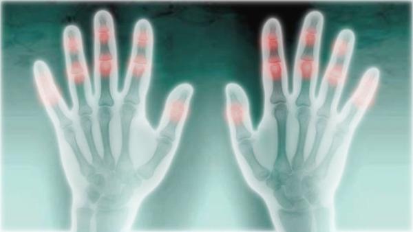 【100年の謎】指の関節はなぜ鳴るのか?のサムネイル画像