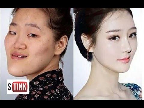 韓国人男性から「整形」を強要されて困っている日本女子wwwwwwwwwwwwwwwのサムネイル画像