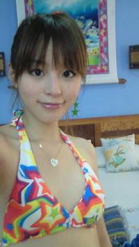 平野綾さんの活動休止は円形脱毛症や不眠症によるものだったのサムネイル画像