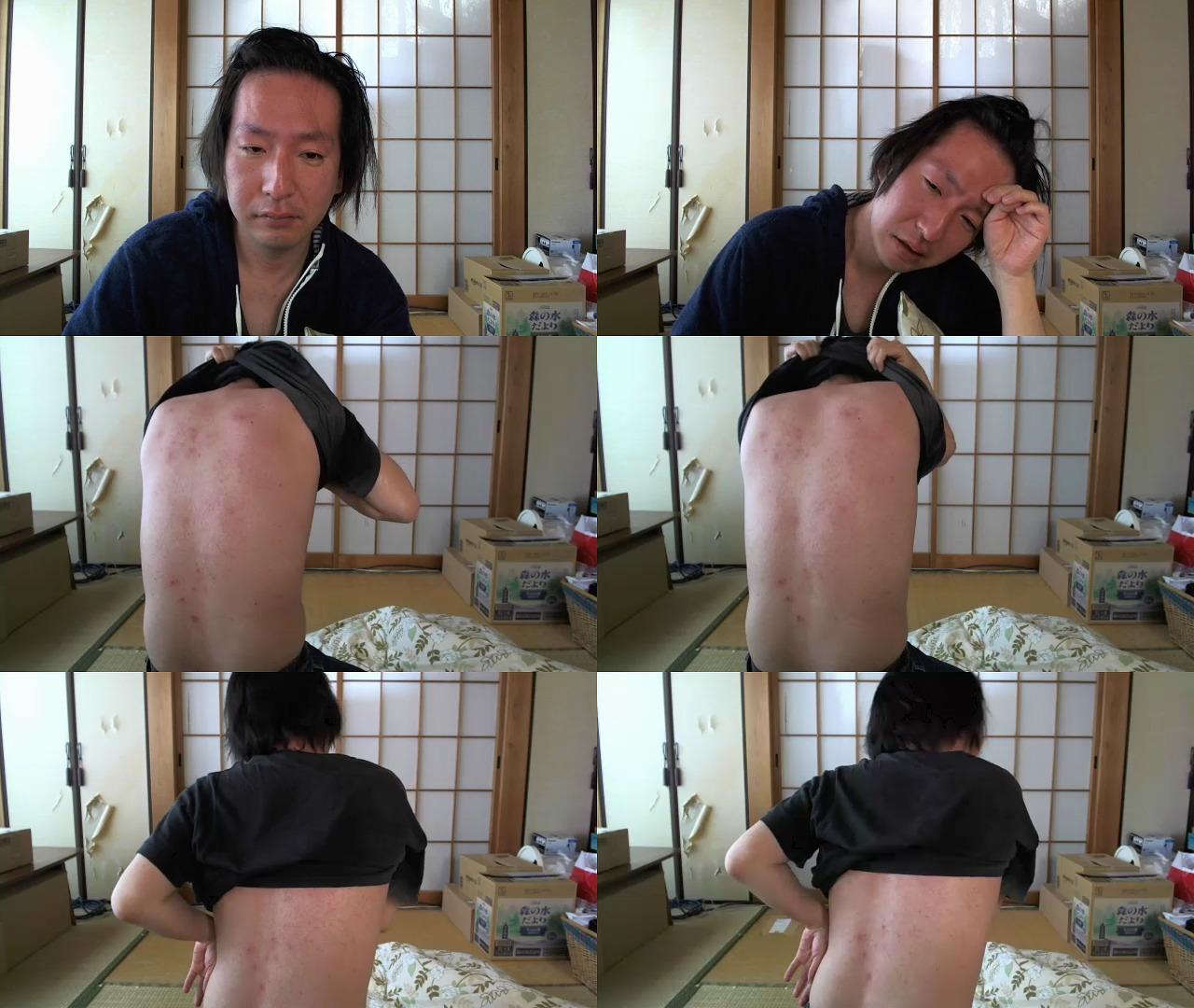 【画像】有名ニコ生主、梅毒に感染してしまうwwwwwwwwのサムネイル画像