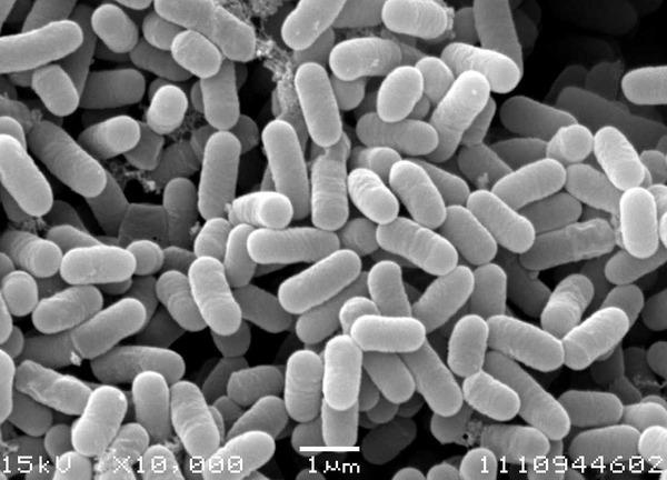 【悲報】人間の腸内では細菌が「陣地取り合戦」をしており、敗れた細菌は死ぬ。だからたまに乳酸菌を取ると良い。のサムネイル画像