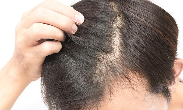 【朗報】理研、毛髪の「もと」となる部分を大量に作る技術を開発wwwwwwwwwwwwwwwwwのサムネイル画像