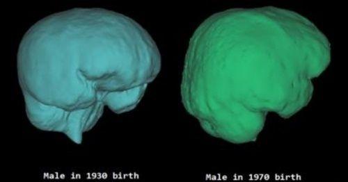 【!?】「韓国人の頭蓋骨」日帝強占期と解放後を比べる → 驚きの変化が明らかにwwwwwwwwwwwwwwのサムネイル画像