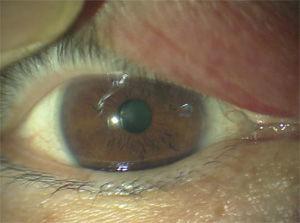腫れる 眼球 が