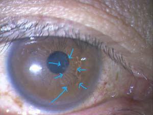 白くなっているのが角膜にできたヘルペスですが、わかりますか?