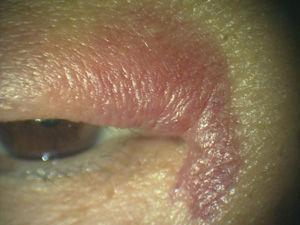 眼瞼皮下出血2
