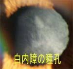 白内障瞳孔