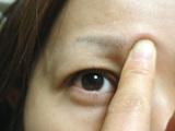二重まぶた自力形成指マッサージ1