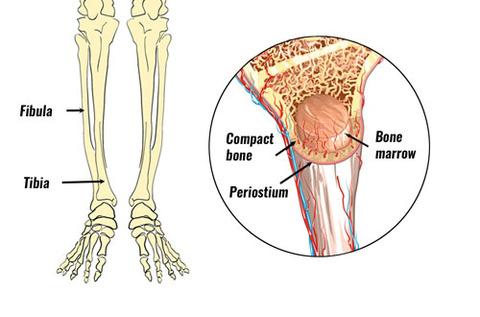 shin-splints-anatomy500b