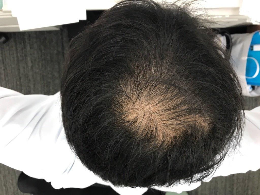 初期 脱毛 フィナステリド