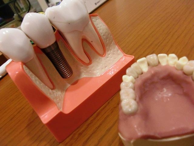 きたの歯科 模型