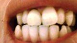 きたの歯科 光る歯