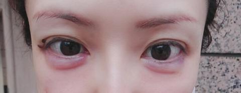 BeautyPlus_20180520184136010_save