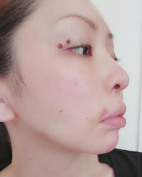 BeautyPlus_20180826162421479_save