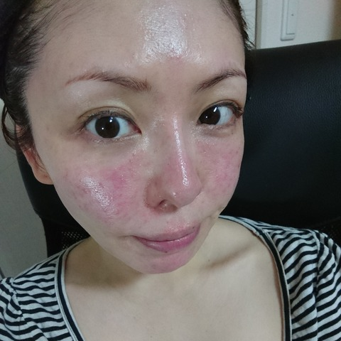BeautyPlus_20180423213801647_save
