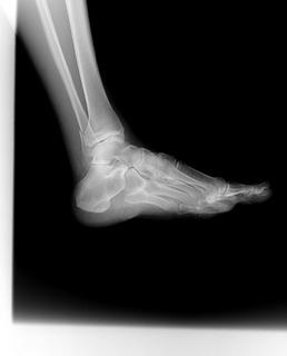 右足関節1