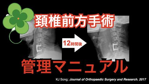 頚椎前方手術気道管理マニュアルの作成