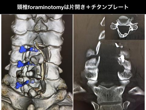 頸椎椎弓形成にforaminotomyを追加するときは、チタンプレートの片開き式かな。