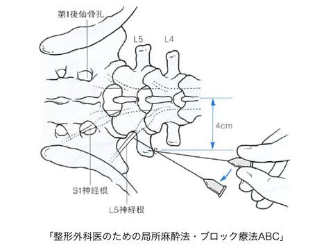 アンギオ室での神経根ブロックの手技
