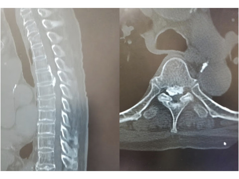 嘴型の胸椎後縦靭帯骨化症の治療計画はとてもとても難しい
