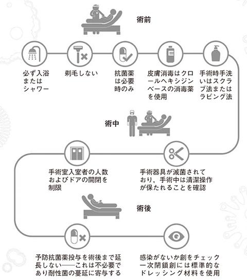 手術部位感染症の予防について