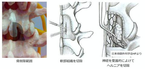 顕微鏡下腰椎椎間板ヘルニア切除術を受ける方へ