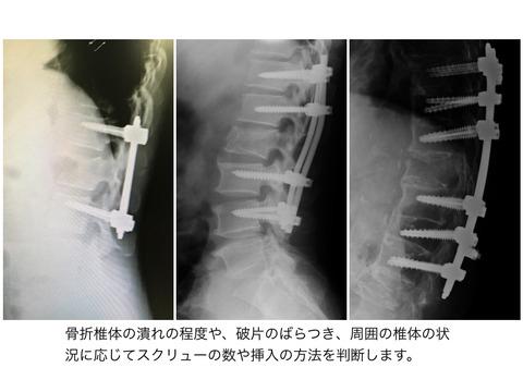 胸腰椎破裂骨折の手術治療の方法には正解がない!!