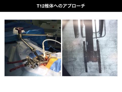 XLIF開創器でのT12椎体へのアプローチ