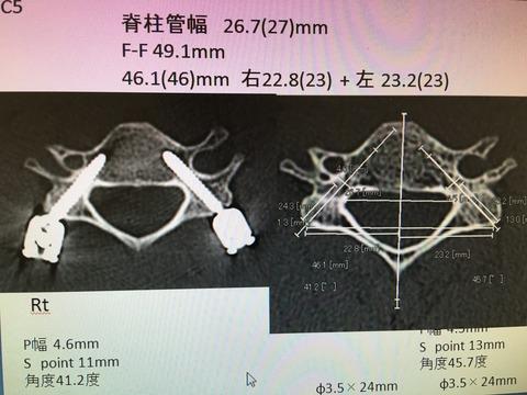 頸椎椎弓根スクリュー刺入の考察