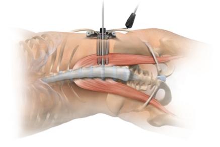 低侵襲腰椎前方椎体間固定術(XLIF)について