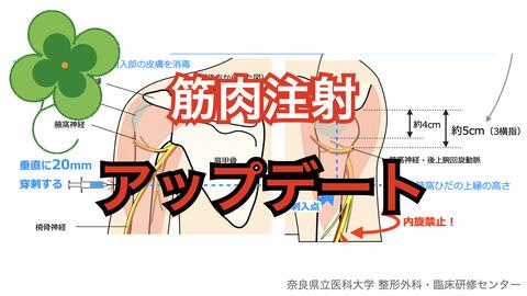 コロナワクチン接種後に腕が上がらないのは筋肉注射の部位のせい?