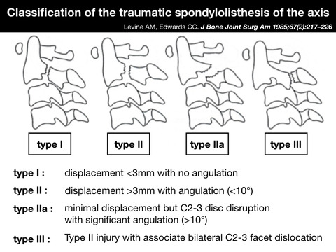 ハングマン骨折(軸椎関節突起間骨折)のtranspedicular screw fixationの注意点