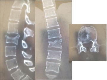 MIStは破裂骨折手術の正解になり得るのか